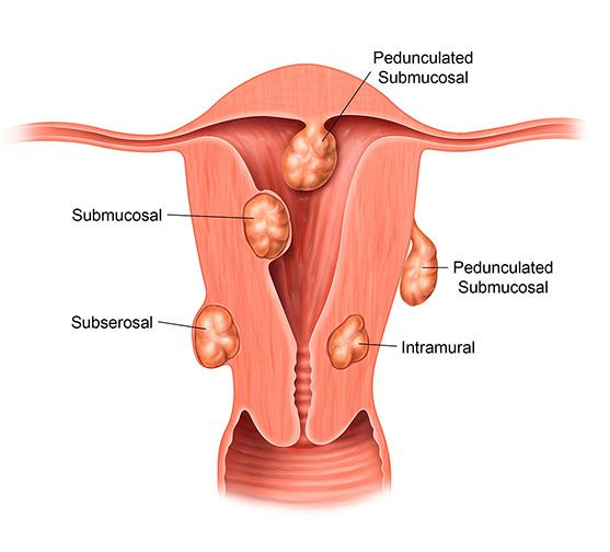 Diagram of different types of uterine fibroids
